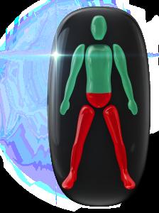 Movimiento muy limitado de la parte inferior del tronco y de las piernas.