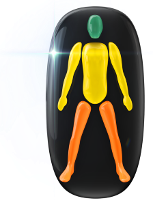 Movimiento ligeramente limitado del cuerpo y de los brazos, y moderadamente limitado de las piernas.