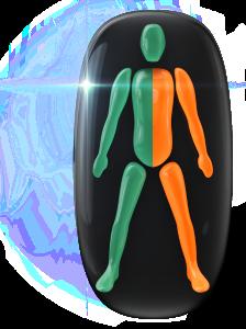 片側下半身の動きと調整に中等度の障害。