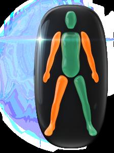 Transtorno do movimento ou falta de coordenação motora de grau moderado em ambos os braços e em uma das pernas.