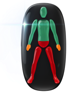 Transtorno do movimento de alto grau na base do tronco e nas pernas, com falta de coordenação motora de grau moderado nas mãos, com limitação da função do movimento de pega.