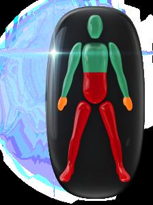 Pohyb v strednej časti trupu a nohách je veľmi ovplyvnený, pričom koordinácia a stisk v rukách sú stredne postihnuté.
