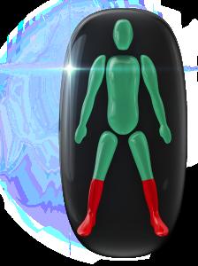 Transtorno do movimento e comprometimento da força de alto grau na parte inferior das pernas, incluindo os tornozelos e os pés.