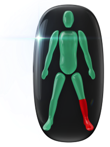 Movement and power highly affected in one lower leg, ankle and foot.