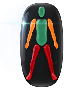 Movement moderately affected in the arms and highly affected in the legs.