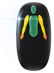 Ausência de ambas as pernas e transtorno do movimento de grau moderado nos braços e falta de coordenação motora de grau moderado nas mãos, com limitação da função do movimento de pega.