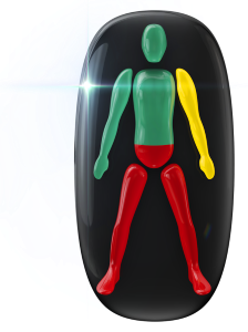Movement highly affected in the lower trunk and legs, with one arm also mildly affected.