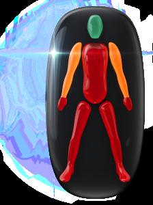 Pohyb v trupe, nohách a rukách je výrazne postihnutý so stredným postihnutím pohybu v ramenách.