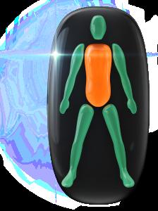 Transtorno do movimento e comprometimento da capacidade de rotação, de grau moderado, no tronco e no corpo.