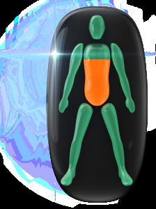Transtorno do movimento e comprometimento da capacidade de rotação, de grau moderado, do meio do tronco para baixo.