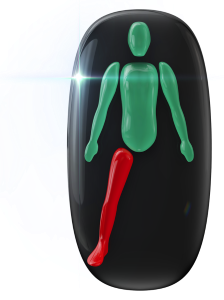 Neprítomnosť jednej nohy a výrazné postihnutie pohybu druhej nohy.