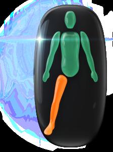 Absence d'une jambe, avec mouvement modérément limité de l'autre jambe.