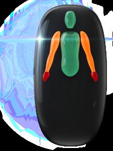 Ausência de pernas, com transtorno do movimento de grau moderado nos braços e de alto grau nas mãos.
