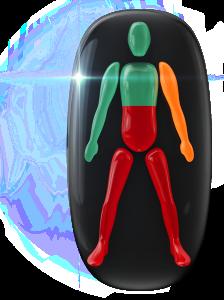 Transtorno do movimento de alto grau no tronco e nas pernas e de grau moderado em um dos braços.