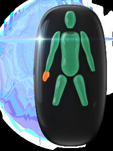 Ausência de ambas as pernas na base do joelho e de uma das mãos e transtorno do movimento de grau moderado, com limitação da função do movimento de pega, por parte da mão disponível.