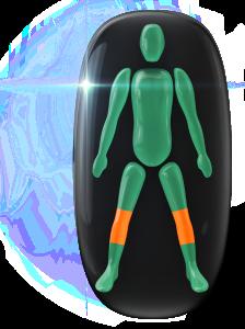Mouvement modérément limité dans les deux genoux.
