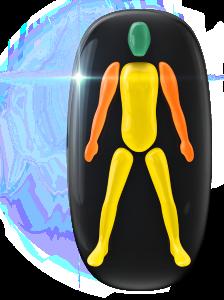 Movimiento y coordinación ligeramente limitados del tronco y de las piernas, con una discapacidad moderada en los brazos.