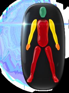 Pohyb alebo koordinácia sú veľmi postihnuté v celom trupe a nohách s mierne postihnutými ramenami a stredne postihnutý stisk v rukách.