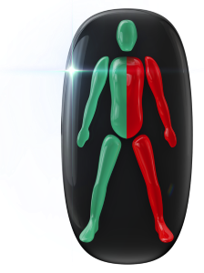Transtorno do movimento e falta de coordenação motora de alto grau em um dos lados do corpo.