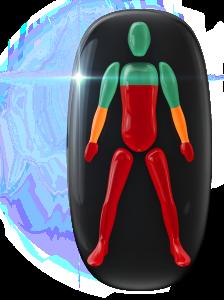 Transtorno do movimento de alto grau do peito para baixo, nas pernas e nas mãos e de grau moderado nos antebraços.