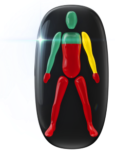 Movement and coordination highly affected in the trunk, legs and hands, with one arm also affected to a mild degree.