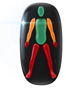 Movement in the legs and hands affected to a high degree and moderately in the arms.