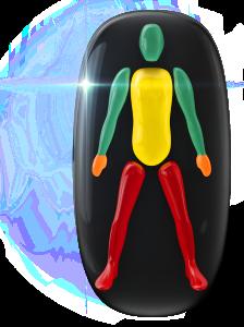 Transtorno do movimento e falta de coordenação motora de alto grau nas pernas, de baixo grau no tronco e de grau moderado nas mãos.