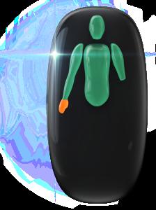 Ausência de ambas as pernas e de um dos antebraços e transtorno do movimento de grau moderado da mão do lado oposto do corpo.