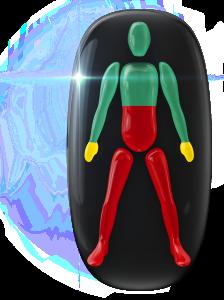 Transtorno do movimento de alto grau a meio do tronco e nas pernas e de baixo grau nas mãos.