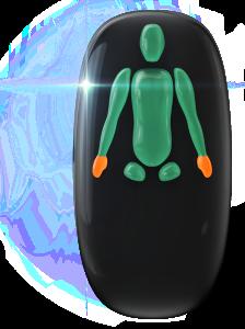 Ausência de ambas as pernas abaixo das ancas e transtorno do movimento de grau moderado nas mãos.
