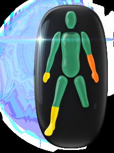 Transtorno do movimento e falta de coordenação motora de baixo grau em uma das mãos e em uma das pernas no mesmo lado do corpo e de grau moderado no antebraço, do outro lado do corpo.