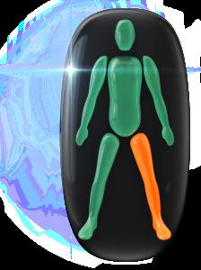 Movimiento y coordinación moderadamente limitados de una pierna.