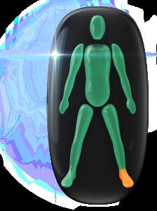 Mouvement modérément limité d'un pied et de la cheville.