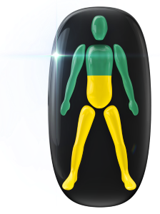 Transtorno do movimento ou falta de coordenação motora de baixo grau a meio do tronco e nas pernas.