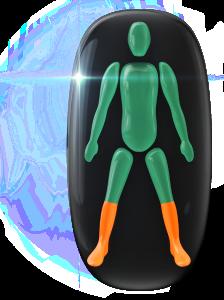 Movimiento y coordinación moderadamente limitados de la parte inferior de las piernas.