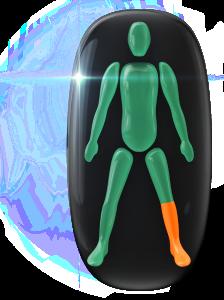 Mouvement et coordination modérément limités d'un bas de jambe.