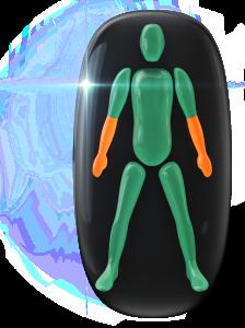 両前腕の動きと調整に中等度の障害。