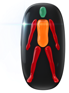 Highly affected movement in both arms and both legs, with movement in trunk affected to a moderate degree.