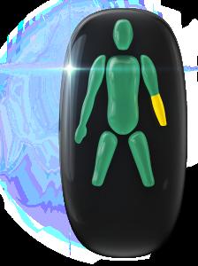 Ausência de ambas as pernas na base do joelho e de uma das mãos, com um comprometimento de baixo grau em um dos antebraços.
