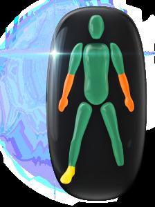 Transtorno do movimento de grau moderado em ambos os antebraços, de baixo grau em um pé e ausência do outro pé.