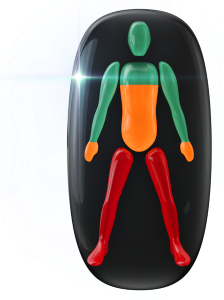 Movement moderately affected in the trunk from the chest and also in the hands, with movement in the legs highly affected.