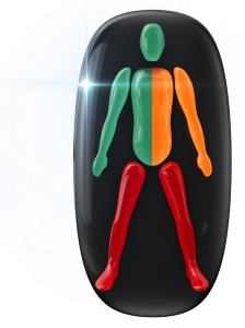 Movement in the legs highly affected and moderately affected on one side of the trunk and in one arm.