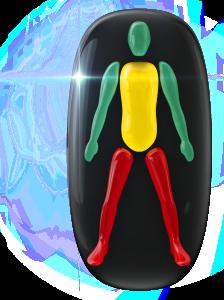 Transtorno do movimento de alto grau nas pernas e de baixo grau no tronco.