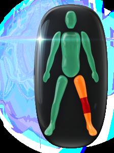 Mouvement et coordination modérément limités d'une jambe, avec mouvement très limité du genou de la même jambe.