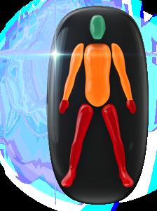 Transtorno do movimento e falta de coordenação motora de grau moderado no tronco e nos braços e de alto grau nas mãos e nas pernas.