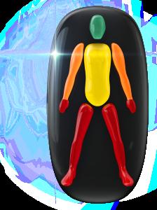 Transtorno do movimento de baixo grau no tronco, de grau moderado nos braços e de alto grau nas pernas e nas mãos.