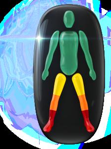 両下肢の動きに障害;上部に軽度、膝に中等度、足首と両足に重度の障害。