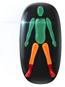 Movement moderately affected in the legs with the lower legs, ankles and feet highly affected.