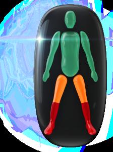 Transtorno do movimento e falta de coordenação motora de grau moderado na parte superior das pernas e de alto grau na parte inferior das mesmas.