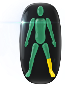 Mouvement et contrôle légèrement limités du bas d'une jambe.